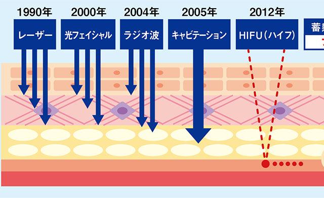 HIFU(ハイフ)たるみ改善の決定版